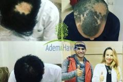implante capilar tecnica fue para cicatriz