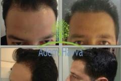 implante capilar tecnica fue sin cortar pelo
