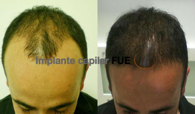 implante capilar 6 meses después