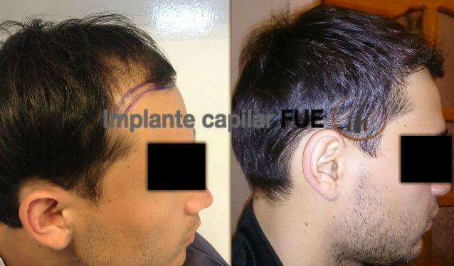 implante capilar antes y despues 1