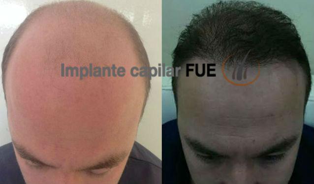implante capilar antes y despues 14
