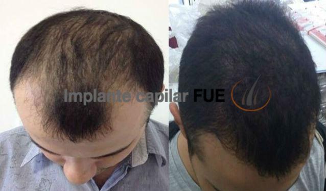 implante capilar antes y despues 15