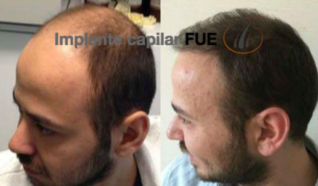 implante capilar antes y despues 16