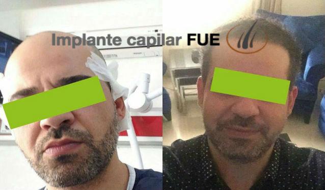 implante capilar antes y despues 17