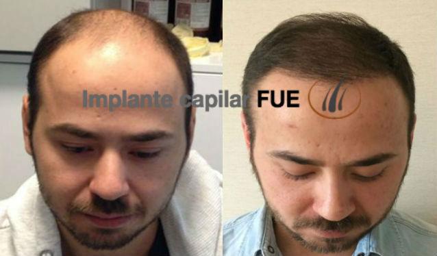 implante capilar antes y despues 3