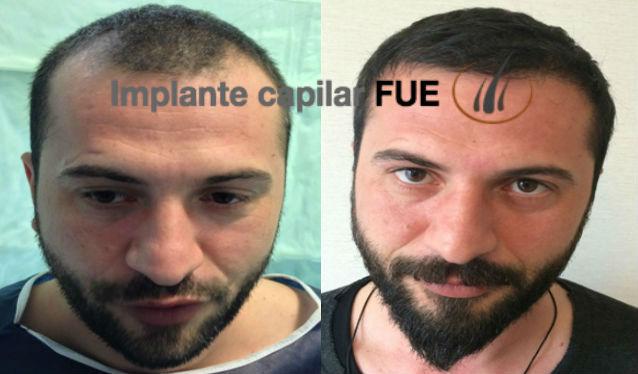 implante capilar antes y despues 5