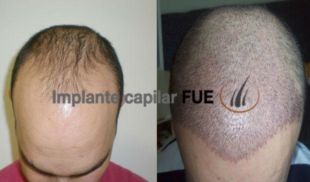 implante capilar después de 1 semana