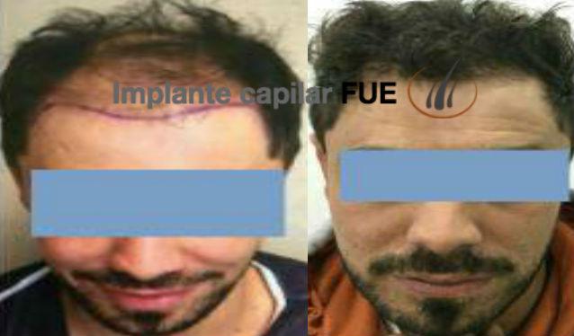 trasplante capilar antes y despues 19