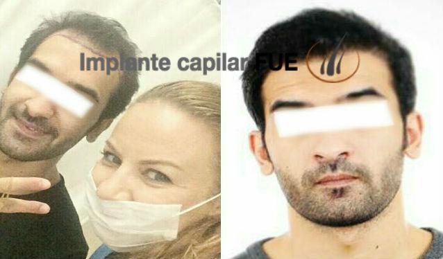 trasplante capilar antes y despues 20