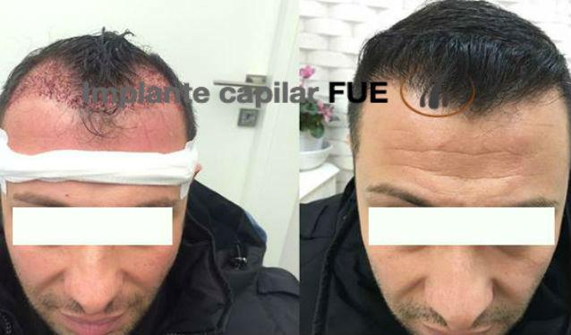 trasplante capilar antes y despues 22