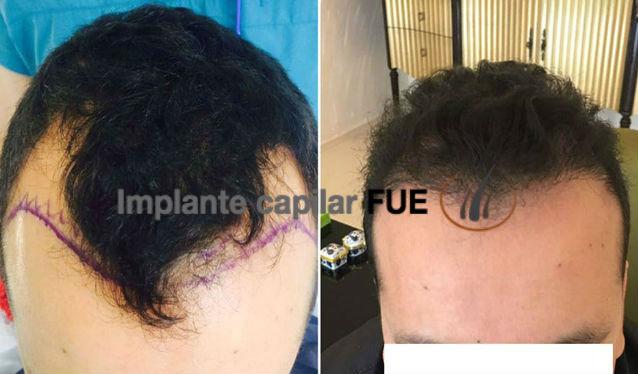 trasplante capilar antes y despues 26