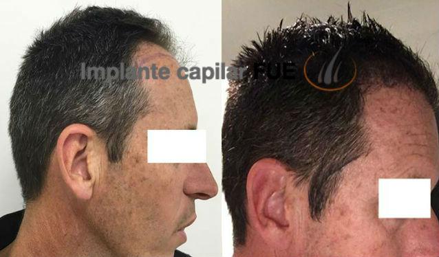 trasplante capilar antes y despues 27