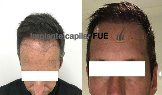 trasplante capilar antes y despues 28