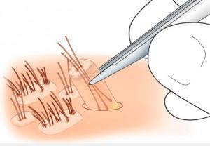 Trasplante capilar y de pelo